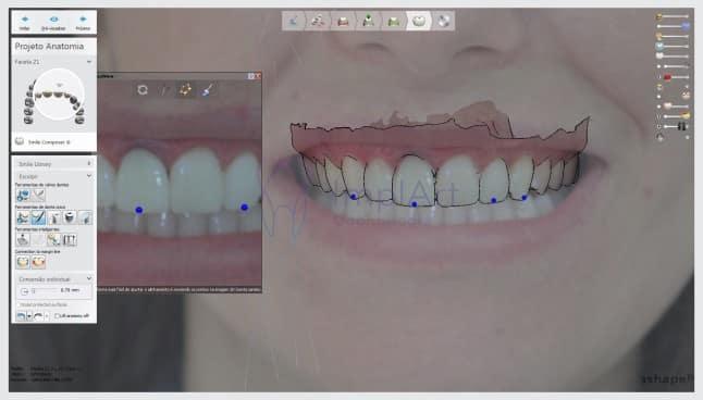 planejamento digital do sorriso tratamento computadorizado odontologia digital tecnologia avançada