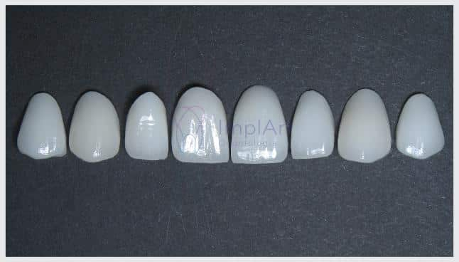 conjunto de lentes de contato dental de porcelana