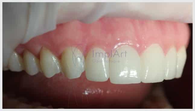 lente de contato dental estética dental dentes bonitos
