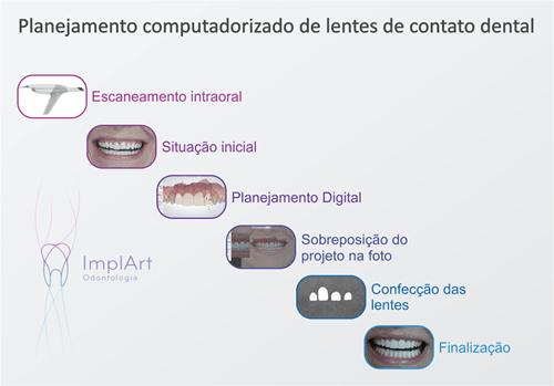 planejamento computadorizado de lentes de contato dental
