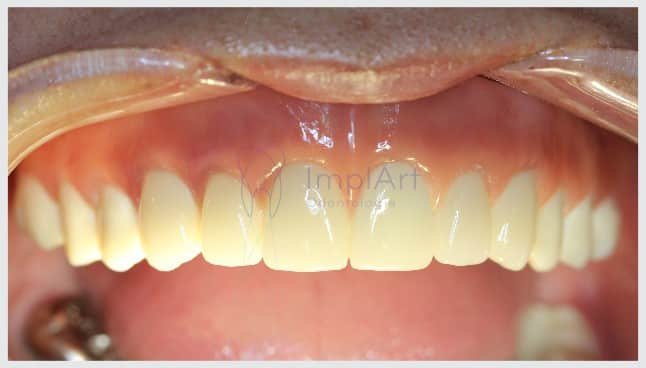 prótese de zircônia prótese dentária estética prótese dentária natural prótese de porcelana