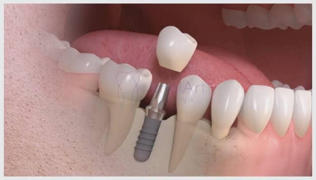 cirurgia de implante dentário sem enxerto