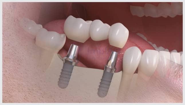 implante vários dentes