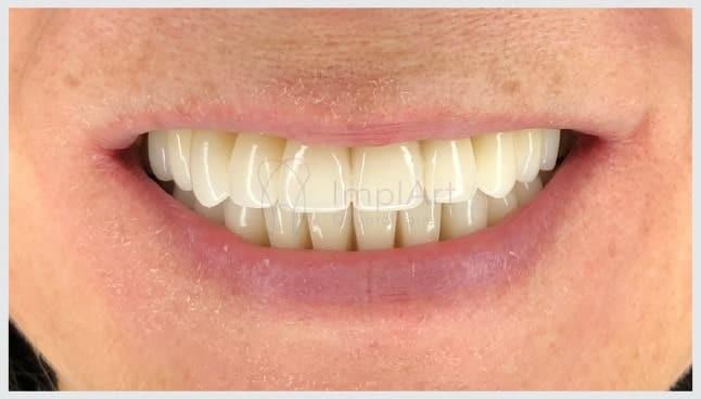 prótese total de zircônia fixa sobre implantes dentários