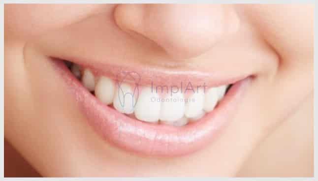 reabilitação oral em day clinic