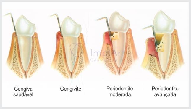 fases da doença periodontal periodontite dente mole
