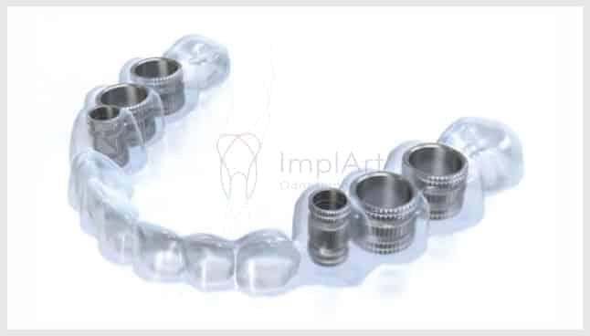 guia cirúrgica para implante dentário cirurgia guiada de implante
