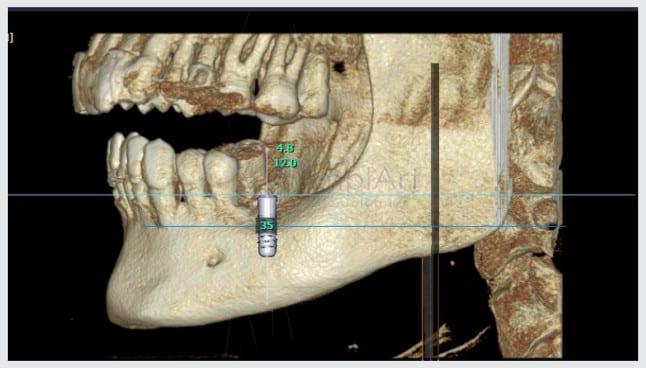 imagem 3d de tomografia computadorizada para planejamento de implante dentário
