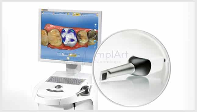 sistema cerec odontologia digital impressora 3d de dentes scanner intraoral