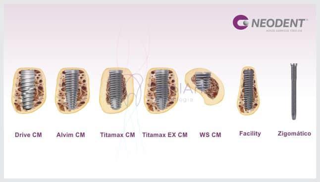 linha de implantes neodent tecnologia avançada