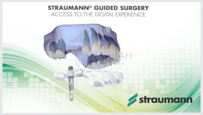 cirurgia guiada de implantes dentários