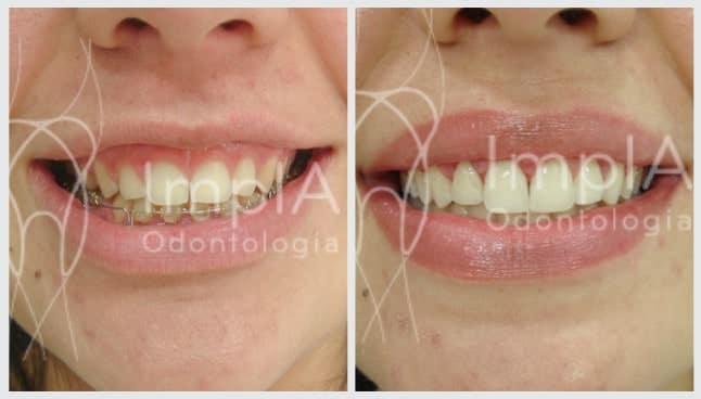 melhora da estética gengival depois do tratamento para sorriso gengival